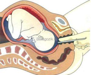 Прокол пузыря без схваток на 39 неделе беременности