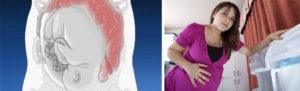 Диарея при беременности во втором триместре