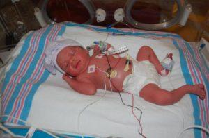 Роды 34 неделя беременности