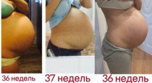 Живот опустился на 35 неделе беременности