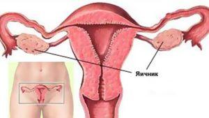 После овуляции болят яичники