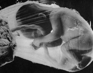 Гипотрофия плода при беременности 30 недель