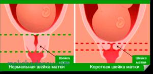 Шейка матки короткая при беременности 24 недели