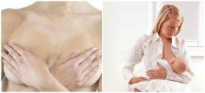 Переохлаждение груди кормящей мамы