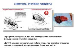 Отслойка плаценты на 40 неделе беременности симптомы