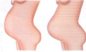Беременность 35 недель болит между ног