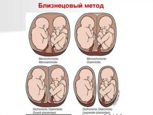 Двойня дихориальная диамниотическая 31 неделя беременности