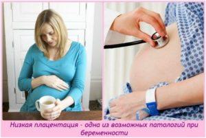 Низкая плацентация при беременности 23 неделя