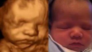 Беременность 38 недель вторые роды предвестники