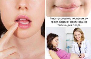 Герпес на губах при беременности в первом триместре последствия