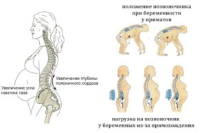 Болит лобковая кость при беременности 27 недель