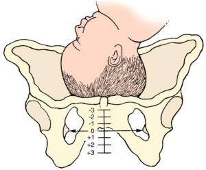 На 32 неделе беременности болит лобковая кость