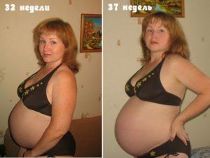 Почему каменеет живот на 35 неделе беременности