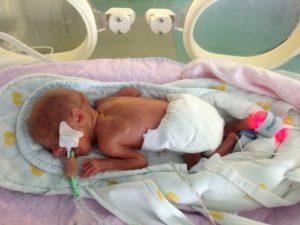 Ребенок родившийся на 32 неделе беременности