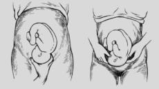 Тазовое предлежание плода на 36 неделе беременности