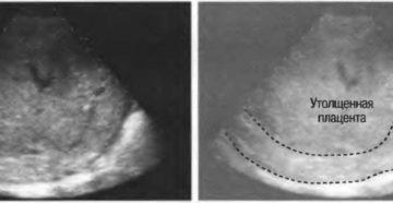 Утолщение плаценты при беременности 32 недели причины и последствия