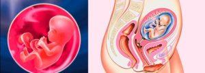 Признаки замершей беременности на 17 неделе