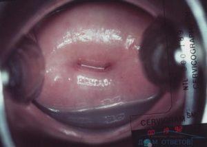 Гинекологический осмотр на 38 неделе беременности