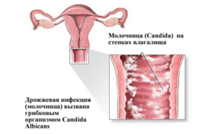 Молочница на 6 неделе беременности