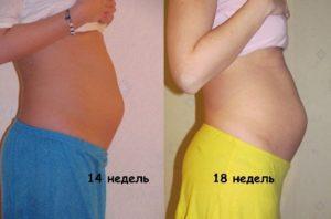 18 неделя беременности живот болит