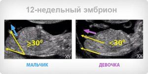 Можно ли на 12 неделе беременности определить пол