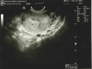 2 недели беременности видно ли на узи