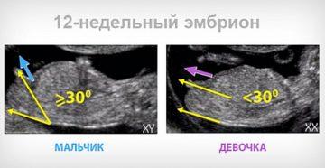 Можно ли на 12 неделе беременности определить пол ребенка