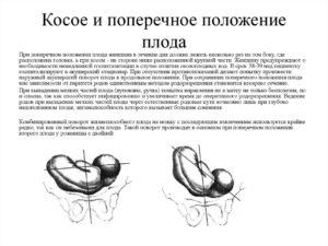 Причины поперечного положения плода после 30 недель беременности