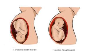 Головное предлежание плода при беременности на 20 неделе