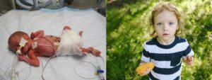 Дети рожденные на 26 неделе беременности