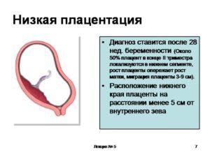 Низкая плацентация при беременности 30 недель