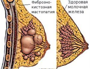 Уплотнение в молочной железе у кормящей мамы